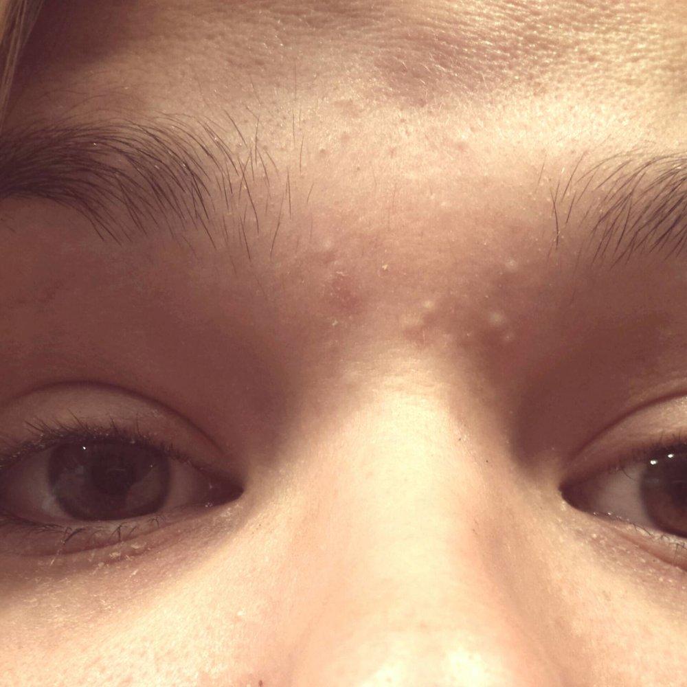 acne-upsizeph2.jpg