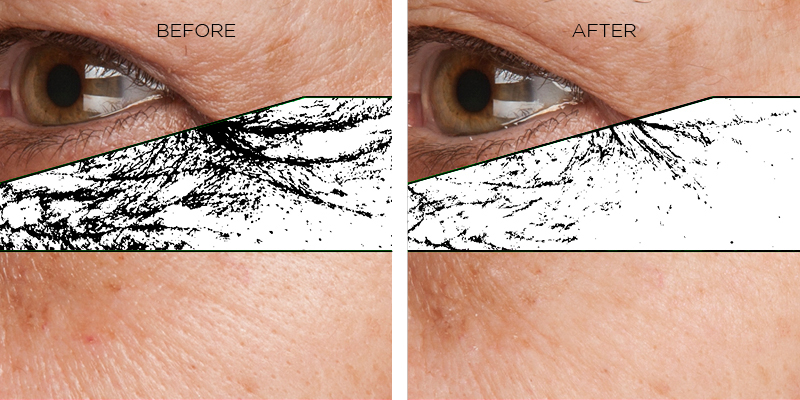 74.28% WRINKLE REDUCTION