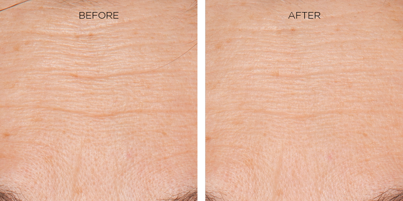 48.72% WRINKLE REDUCTION