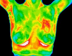 Thermal_Imaging.jpg
