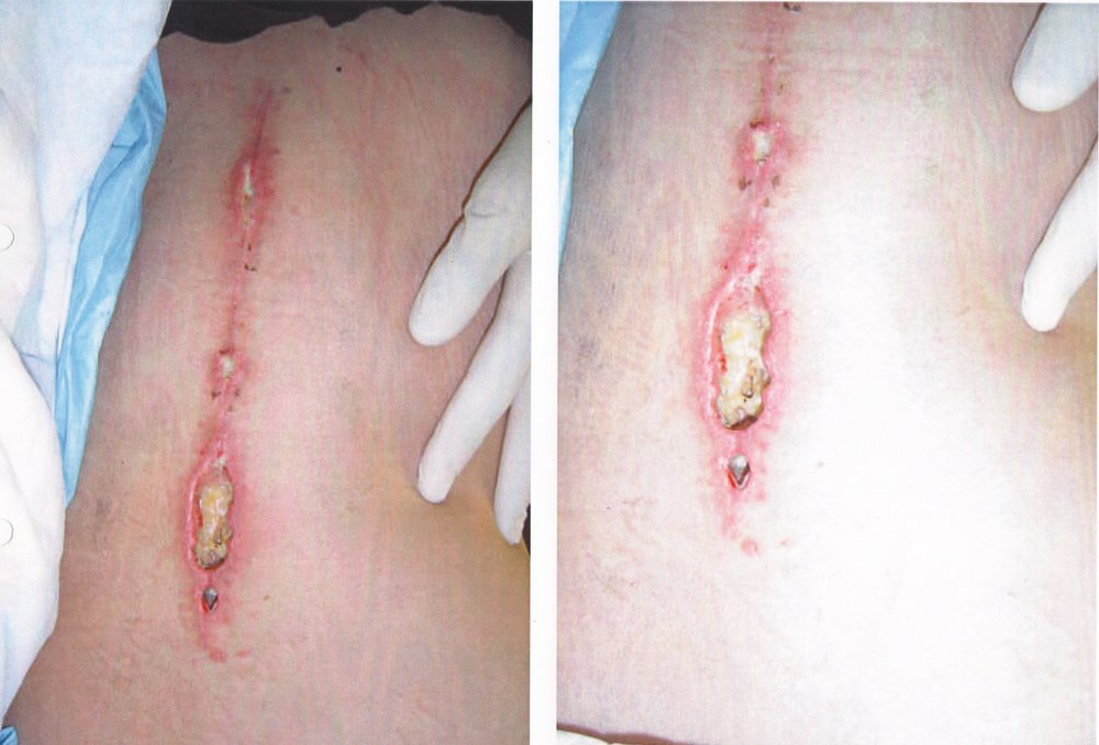 Stage 4 after wound debridement
