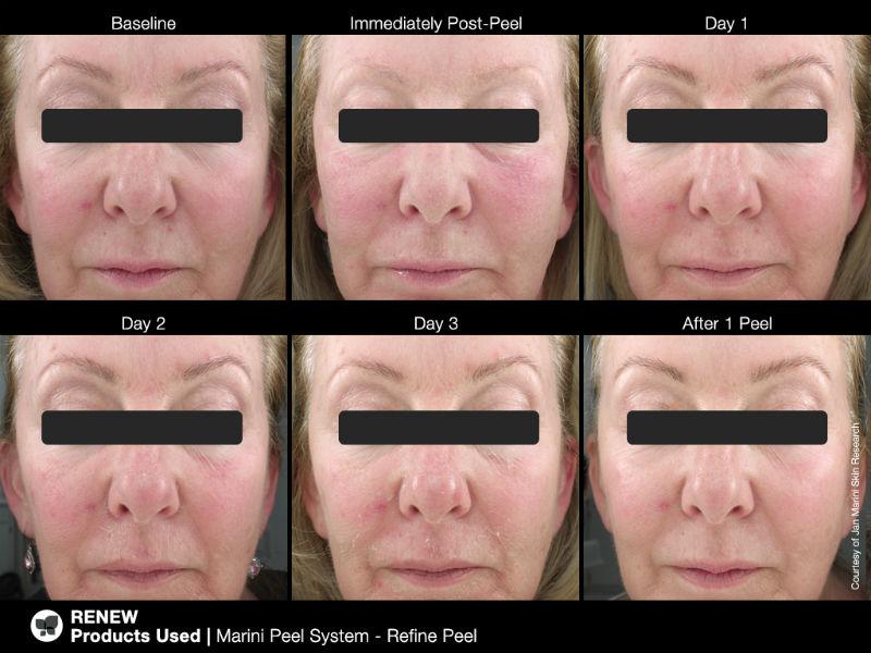 What-is-a-Skin-Peel-2.jpg