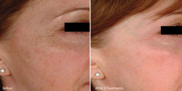 microneedle-los-angeles-before-and-after.jpg