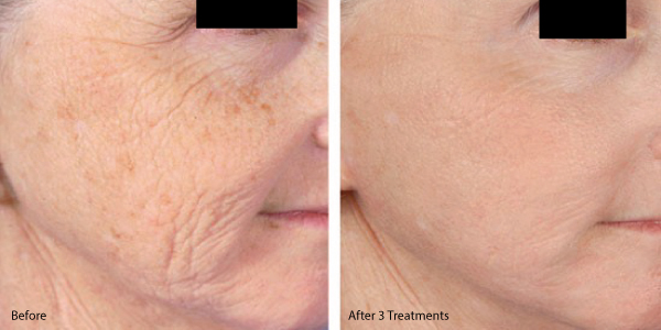 microneedling-with-prp-before-and-after.jpg