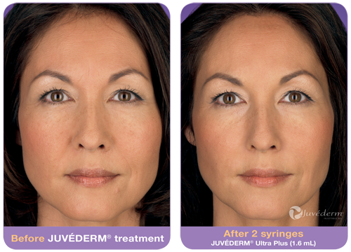 juvederm-before-after-2.png