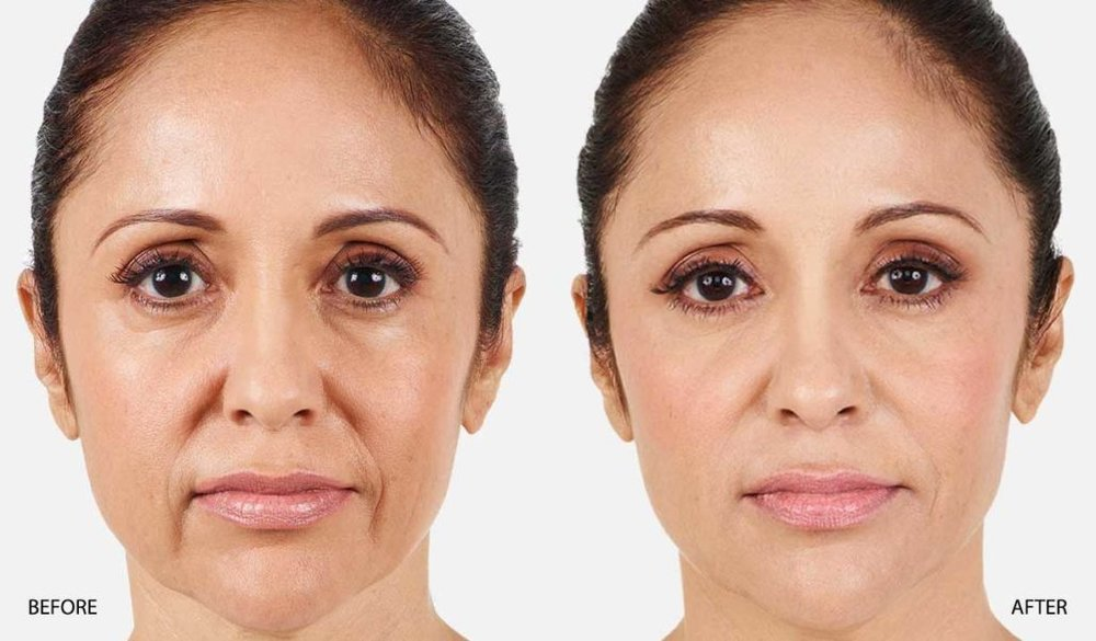 JUVEDERM-XC-BEFORE-AFTER-NASOLABIAL-FOLDS-1030x603.jpg