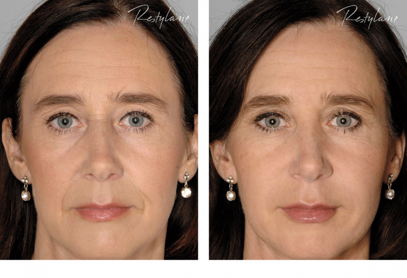 Restylane-before-after-full-face-08.png