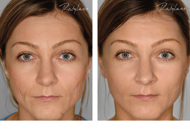 Restylane-before-after-full-face-09.png