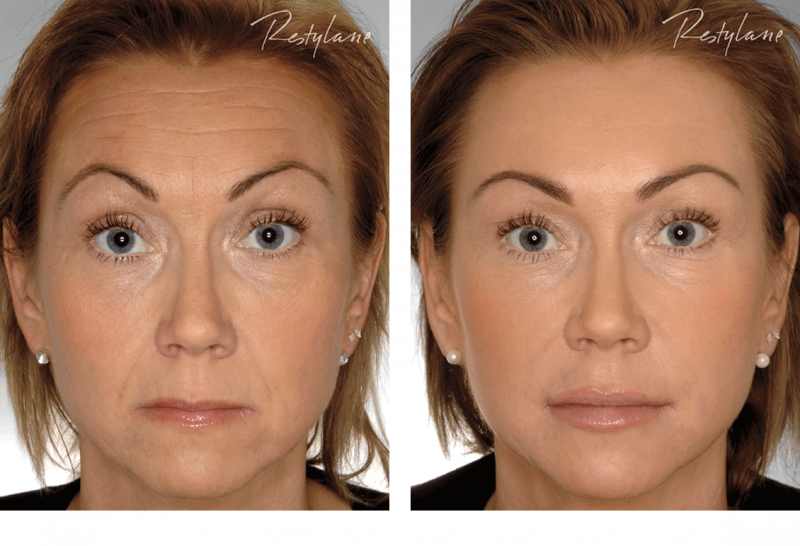 Restylane-before-after-full-face-11.png