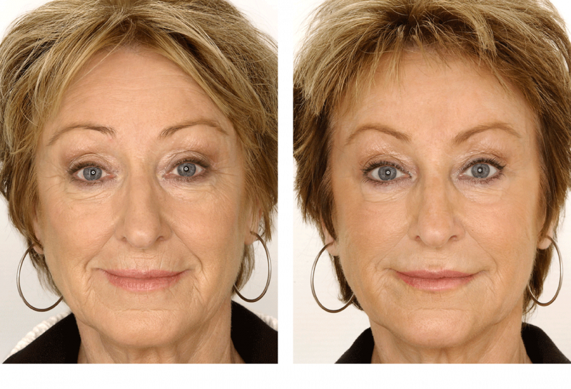 Restylane-before-after-full-face-05.png