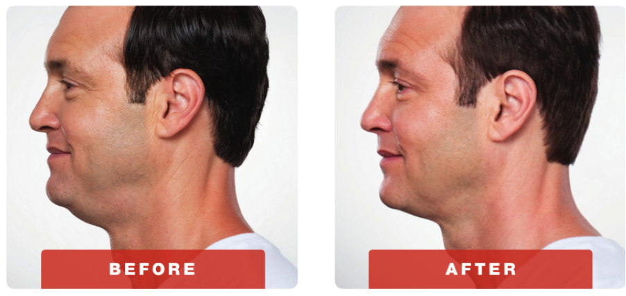 kybella-before-adn-after-2.png