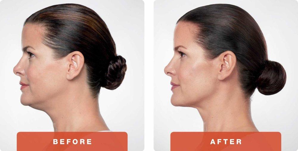 kybella-before-after-3.jpg