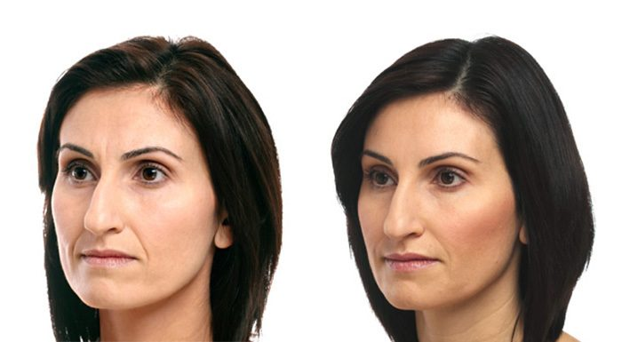 soft-lift-before-and-after-1b.jpg