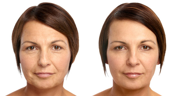 soft-lift-before-and-after-11.jpg