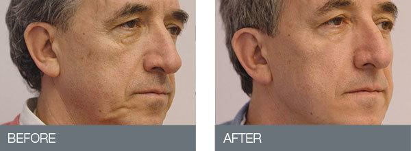 Thread-Lift-Before-After-3.jpg