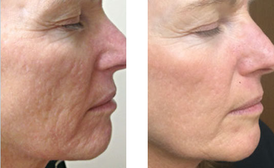 skin-needling-dermapen-before-after.png