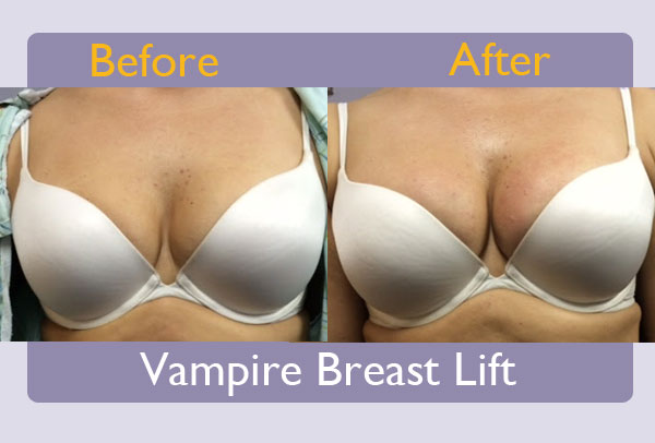 vampire-breast-lift-westchester-county.jpg