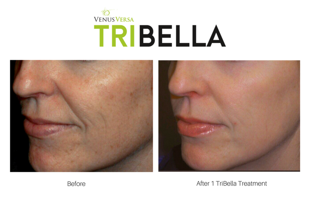Before & After TriBella.png