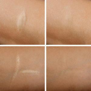 scar-revision-22-300x300.jpg