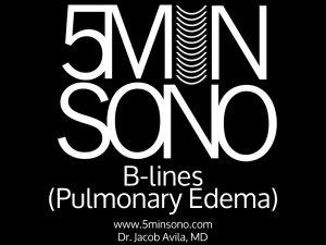 b-lines-menu-page.001-300x225.jpg