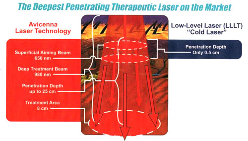 laser treatment for foot pain union city fairview