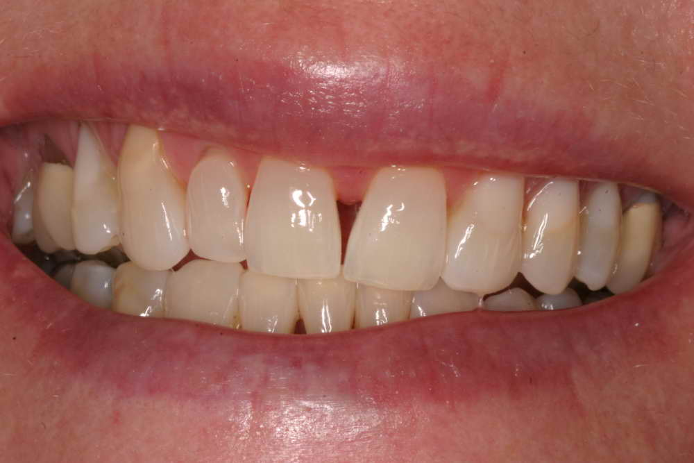 Diastema closure, before