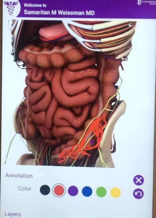 my ulcerative colitis
