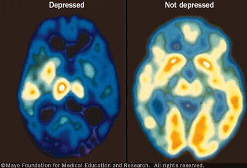 depression_s1_mayo.jpg