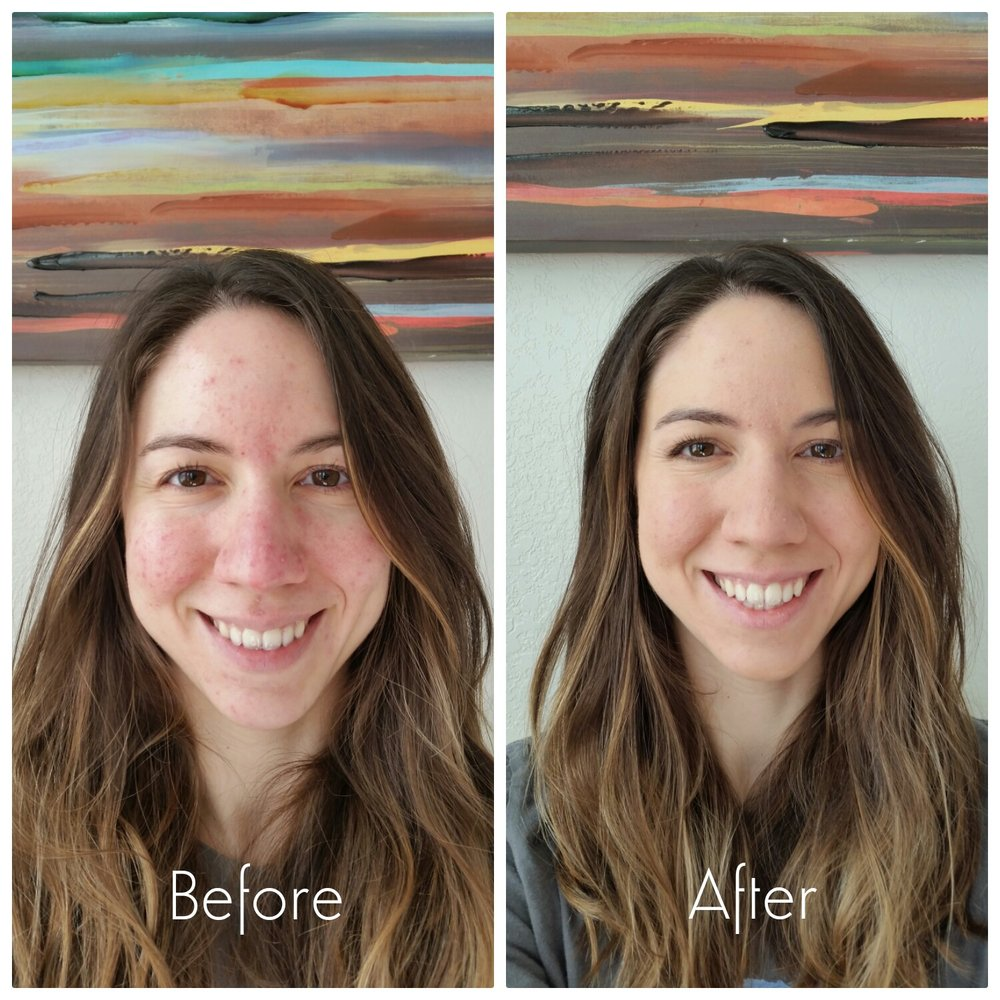 Simple 5 Minute Skincare and Beauty Routine Before and After