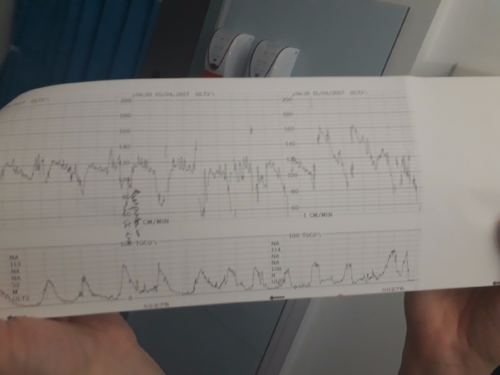contractions sheet