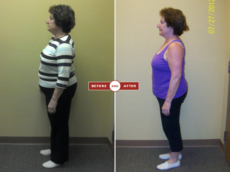 1-27 before and afters100.jpg