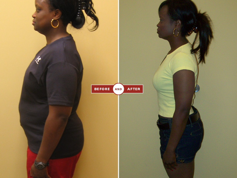 1-27 before and afters103.jpg