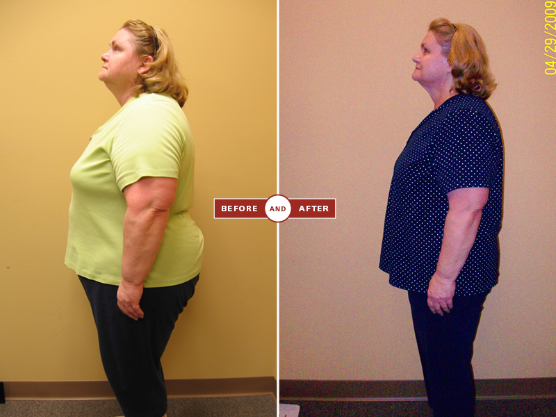 1-27 before and afters118.jpg