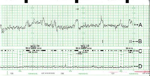 Données indiquées par le monitoring  A. Battement du cœur de bébé C. Mouvements du bébé D. Contractions