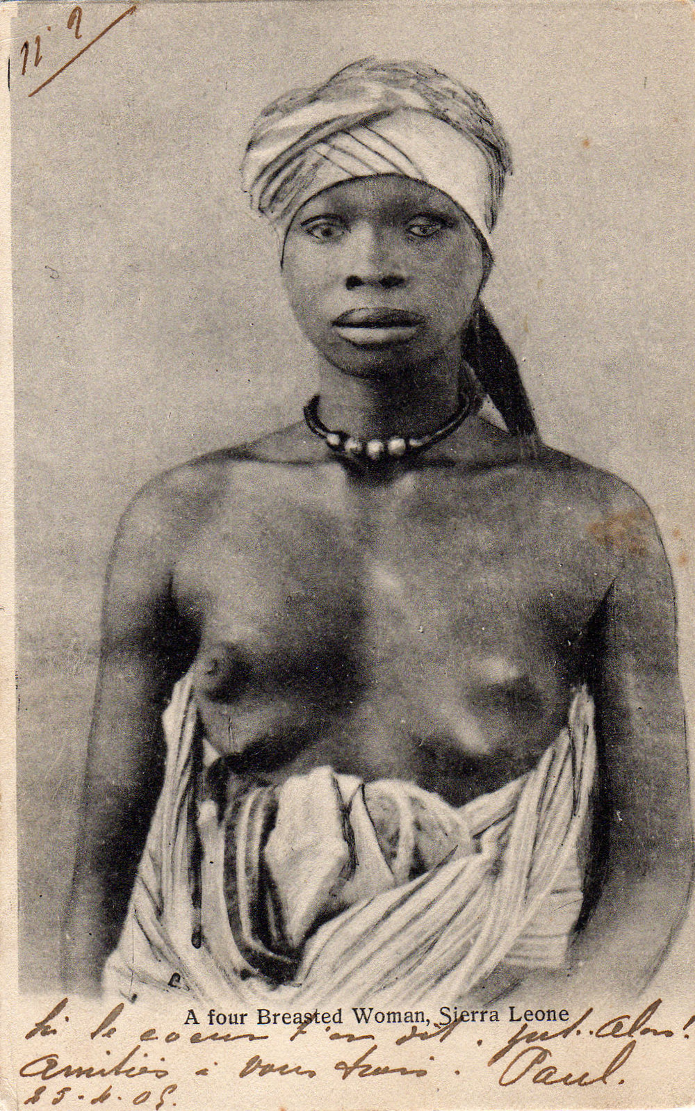 A four-breasted woman, Sierra Leone, 1909.