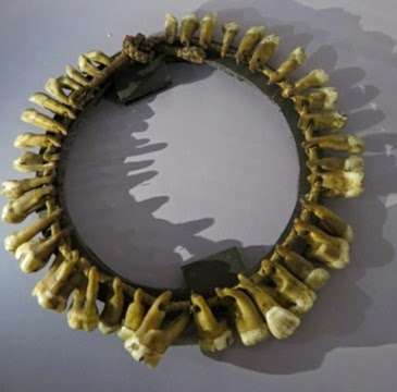Necklace of human teeth brought back from the Congo region by H.M. Stanley, taken in a fight between his party and a cannibal tribe along the Ituri river in 1889.  (Copyright: the Hunterian Museum at the Royal College of Surgeons, London.)