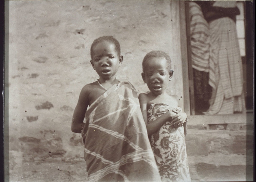 Children with inherited syphilis scars.