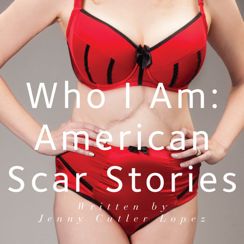 2014 Who I Am: American Scar Stories WINNER of the 2014 Best Non Fiction Howey Award Tells us what it is like to have our lives interrupted by physically scarring life changing events
