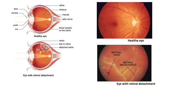 Image Credit:  (Left) http://www.shreeramkrishnanetralaya.com/retinal_detachment.html  (Top Right) https://www.lehp.org.au/Training%20Course/pages/conditions.html  (Bottom Right) http://www.fairvieweyecenter.com/Education/Conditions/RetinalDetachment/tabid/3103/Default.aspx