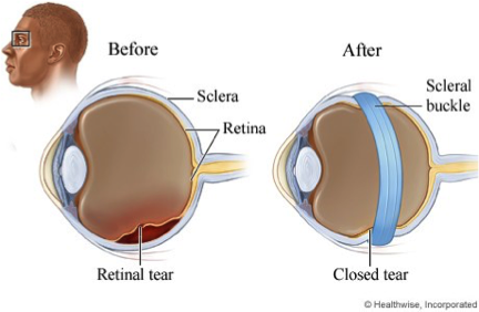 Image Credit: https://www.texomaretina.com/services-2/common-treatments/scleral-buckle/