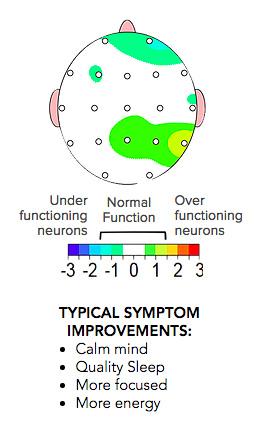 neuroprocess-3.jpg