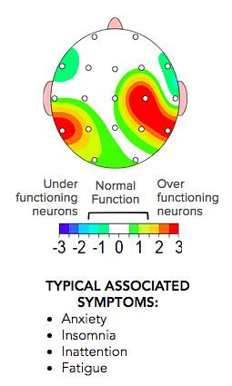 neuroprocess-1.jpg