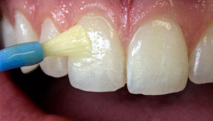 Fluoride Treatment Tamal Vista Dental