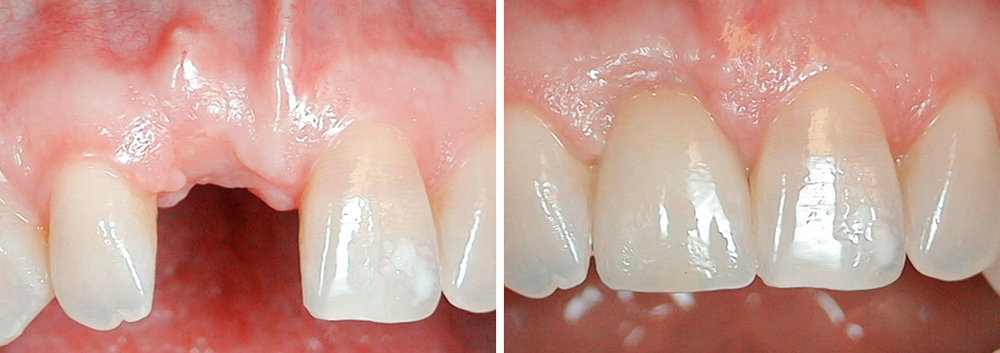 Missing Front Tooth   Patient had her front tooth knocked out in an accident. It took about 10 months to complete her replacement, but it is currently the best way to ultimately replace a tooth and put a patient back to their original smile.