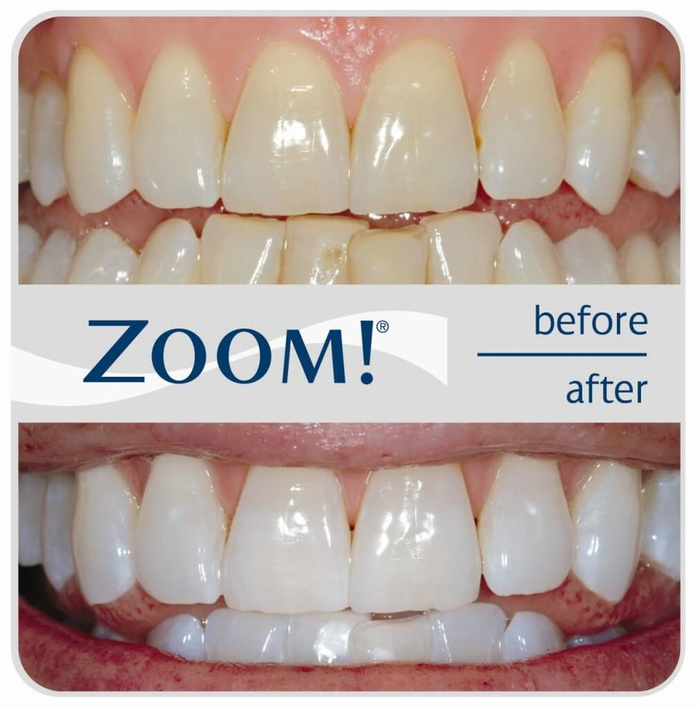 ZOOM-Before-After-1009x1024.jpg
