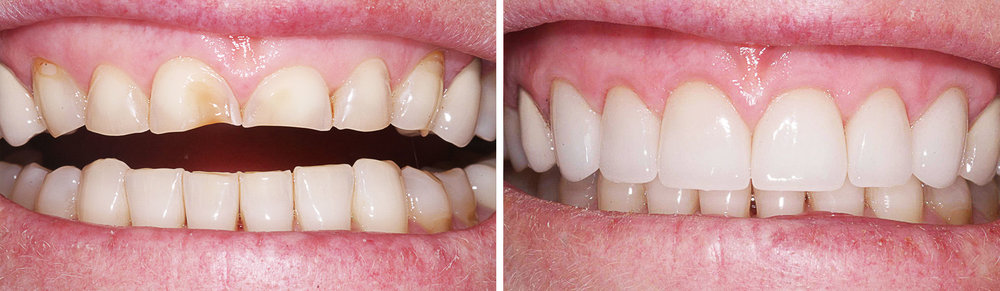 Repairing Acid Damage   Patient treated with 6 ceramic (eMax) crowns to restore her worn and eroded front teeth. This type of damage is seen in patients with a history high acid exposure, either due to diet, like lemon sucking, or to an eating disorder, such as Bulimia.