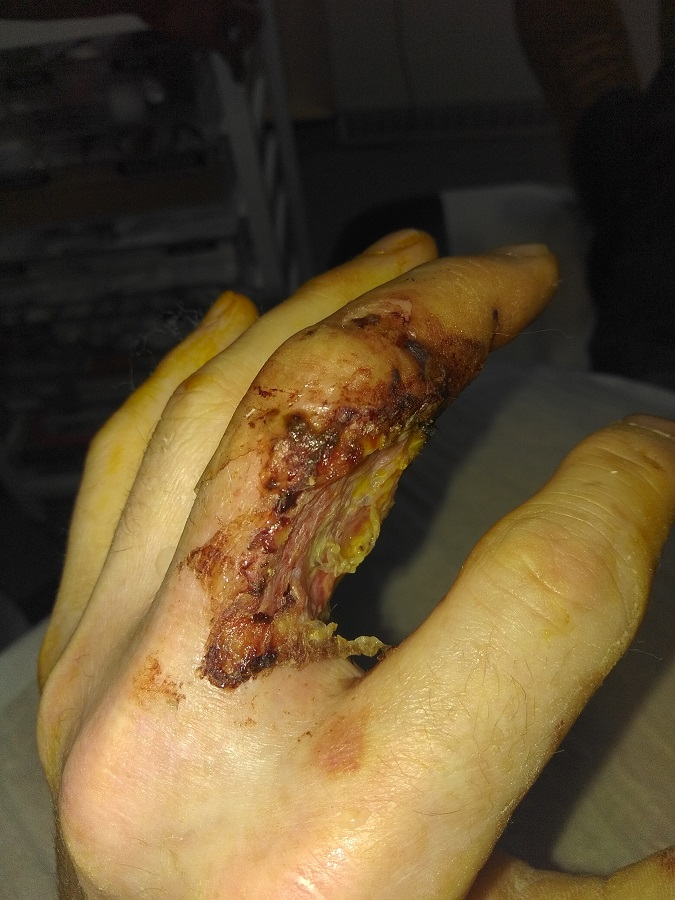 Jack's injury developed and he needed a skin graft