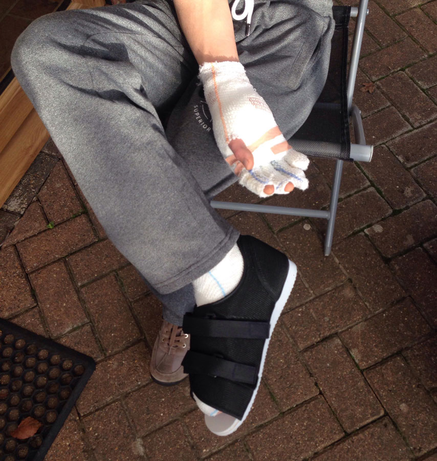 Nick's right hand and right foot suffered the worst burns. He may yet still need skin grafts