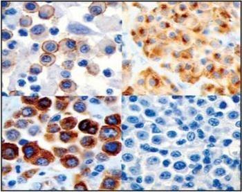 Upper left:  grade I;  upper right , grade II;  lower left , grade III; lower right , negative control. Courtesy of Dr. Matti Kuipel, MSU.