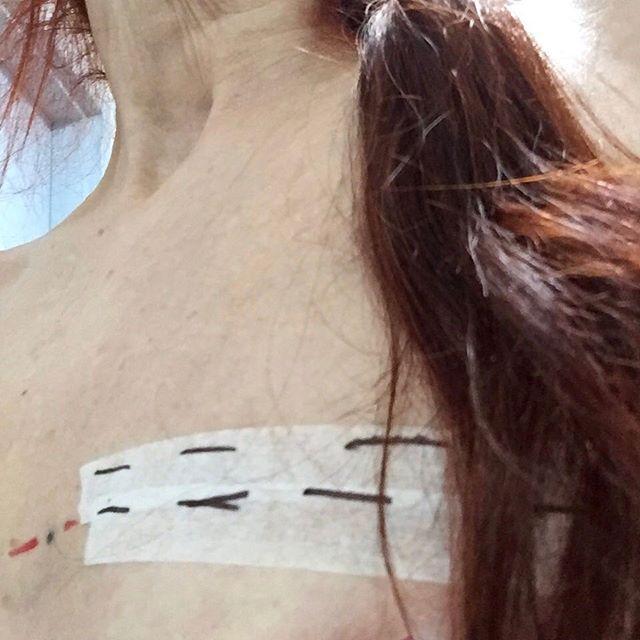 #dashdotdash #twothirds #of #thewaythroughthewoods #ponytails #radiotherapytreatment #selfportraiture #maskingtape #dotdashdot #dashdashdash #ponytales #susiefreeman